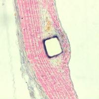 SMA vessel stent rat
